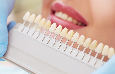 set of different colored teeth comparing to a patient's smile