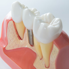 a dental implant between two natural teeth